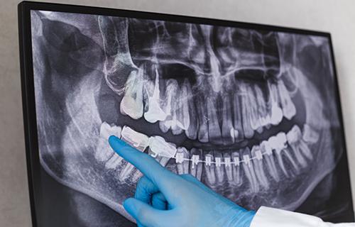 再生療法・骨造成治療について