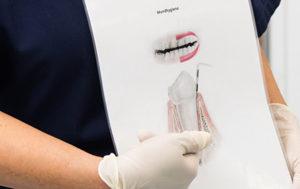 インプラント・審美歯科・矯正歯科|カウンセリング